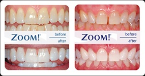 Medicinska pasta za zube