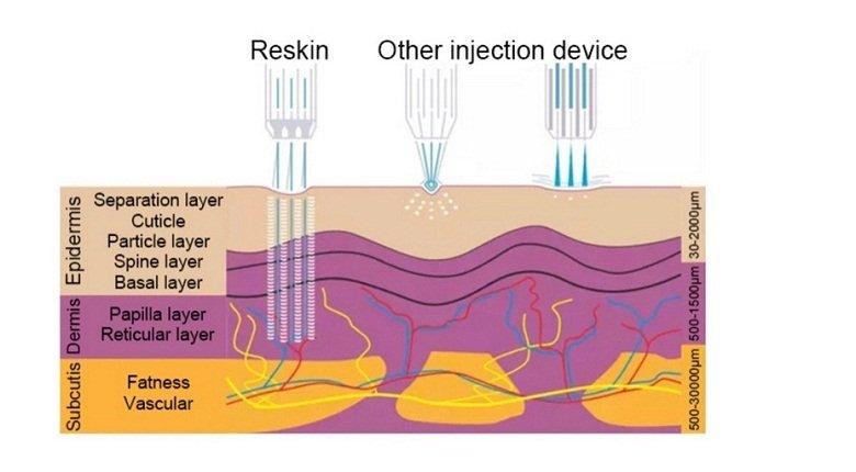 Reskin II