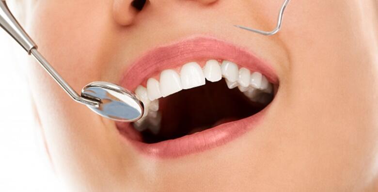 Čišćenje zubnog kamenca, pjeskarenje, poliranje, pregled i savjetovanje za samo 99 kn!