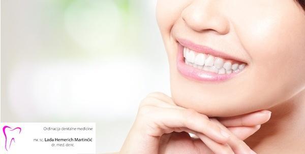 81% popusta na pregled, čišćenje zubnog kamenca, pjeskarenje