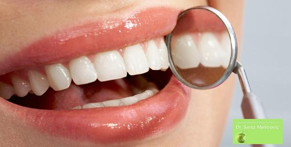 Čišćenje zubnog kamenca, pjeskarenje, poliranje zubi