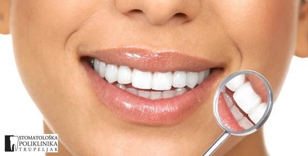 Plomba, čišćenje zubi, pjeskarenje,poliranje