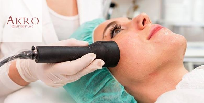 Mikrodermoabrazija, ultrazvuk lica i  tretman vitaminima