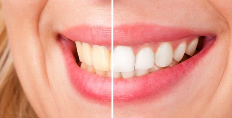 Lasersko izbjeljivanje zubi gelom protiv karijesa