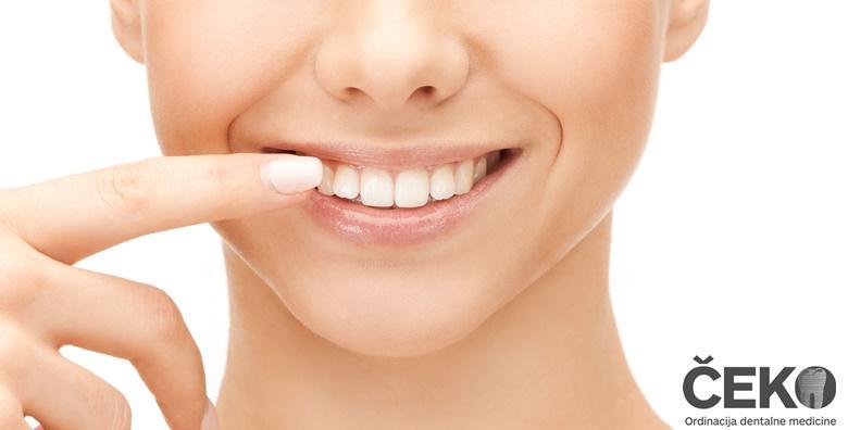 Ponuda dana: Ugradnja zubnog implantata - vratite osmijeh s implantatom vrhunske Nobel Biocare kvalitete i gratis CBCT pretragom u ordinaciji dr. Čeko za 3.999 kn! (Stomatološka ordinacija dr. stom. Milorad Čeko)