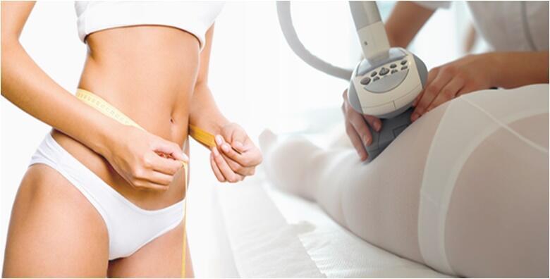 5 ili 10 LPG tretmana tijela - učvrstite kožu u salonu TINAILS od 690 kn!