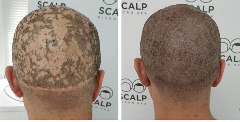 Medicinska mikropigmentacija skalpa