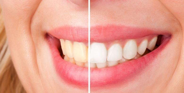 Izbjeljivanje zubi Opalescence Boost gelom i Smilite lampom