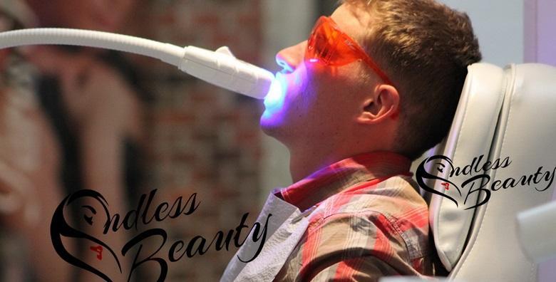 Izbjeljivanje zubi 3D laserom u centru grada