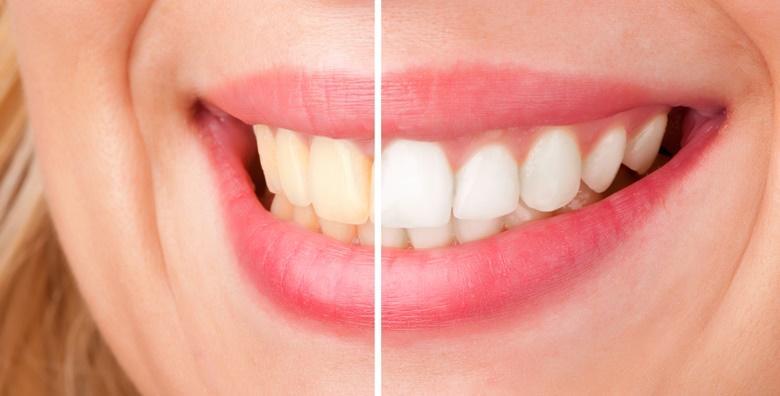 Izbjeljivanje zubi uz čišćenje kamenca, poliranje i pregled