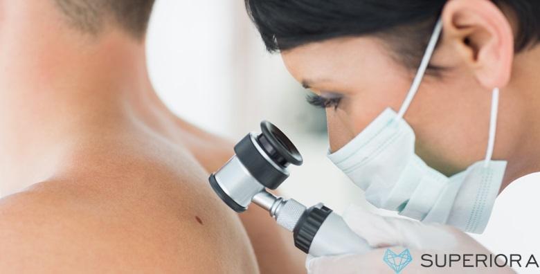 POPUST: 58% - Uklanjanje madeža ili bradavica uz dermatoskopski pregled i lokalnu anesteziju u Poliklinici Superiora od 375 kn! (Poliklinika Superiora)