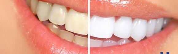 Izbjeljivanje zubi Opalesscence Boost tehnologijom u ordinaciji ili pomoću udlaga - najučinkovitiji, najbrži i najsigurniji tretman za blistav osmjeh od 699 kn!