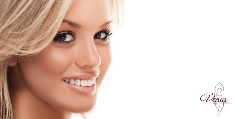 Izbjeljivanje zubi Opalescence Boost gelom i Smilite lampom za 299 kn!
