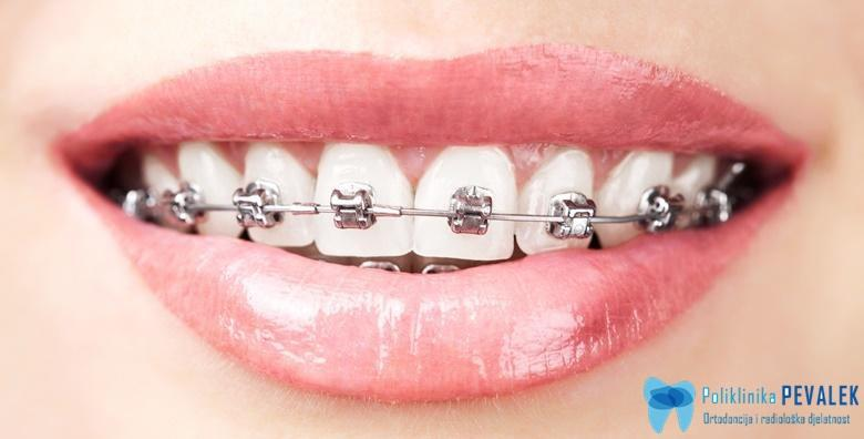 Aparatić za zube za 1 čeljust i svi pregledi tijekom nošenja od 4.250 kn!