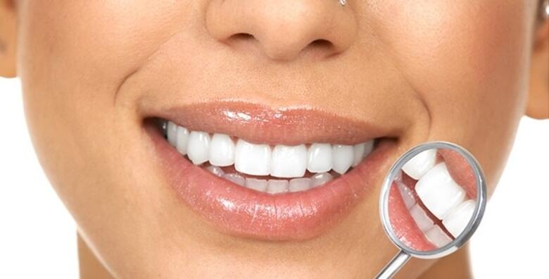 Izbjeljivanje zubi, čišćenje kamenca, poliranje i pjeskarenje zubi uz pregled za 1.499 kn!