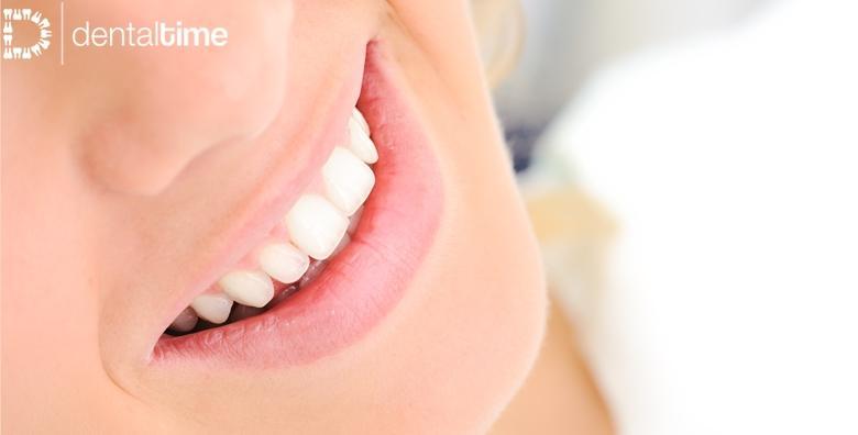 MEGA POPUST: 75% - Čišćenje kamenca ili bijela plomba uz pregled i savjetovanje za 99 kn! (Stomatološka ordinacija Dental Time)