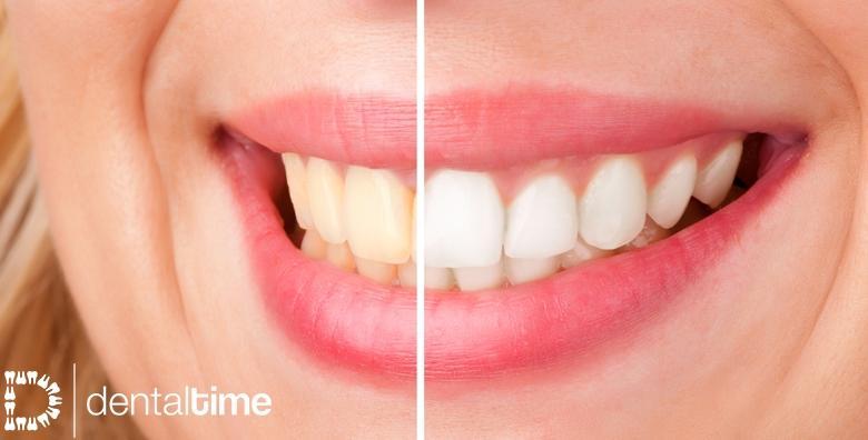 Izbjeljivanje zubi ili ugradnja kompozitne ljuskice - pokažite svima blistav osmijeh od 390 kn!