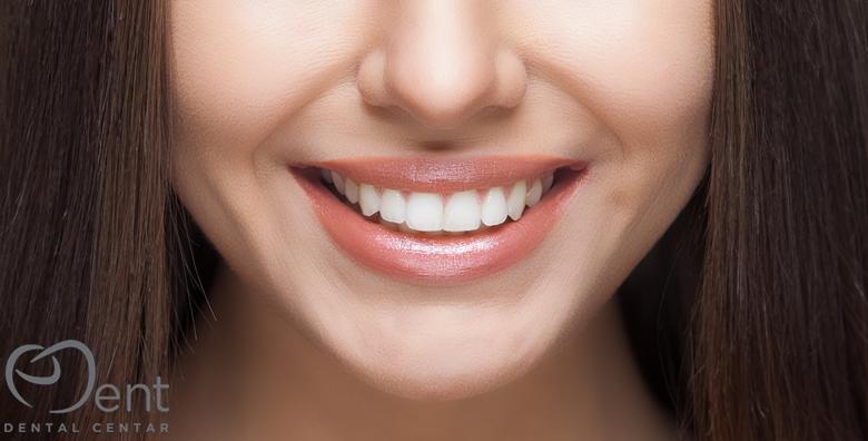 Kompozitna ljuskica - savršena imitacija zuba bez zahvata na zubnom tkivu za 499 kn!