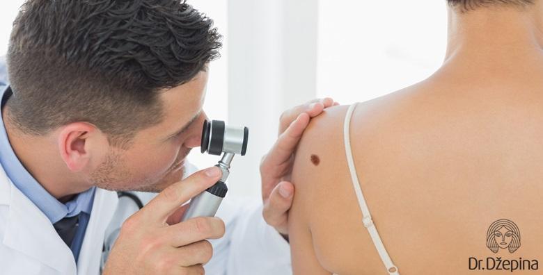 Uklanjanje madeža uz uključen dermatoskopski pregled cijelog tijela za 559 kn!