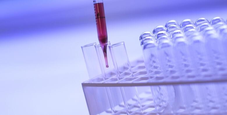 Dijagnostika gljivičnih infekcija kože - testiranje u Poliklinici LabPlus u Zagrebu za 250 kn!