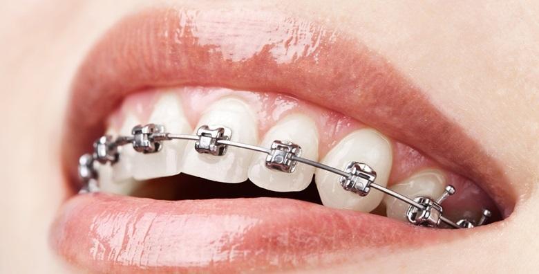 Aparatić za zube - postavljanje i svi pregledi tijekom nošenja za 4.500 kn!