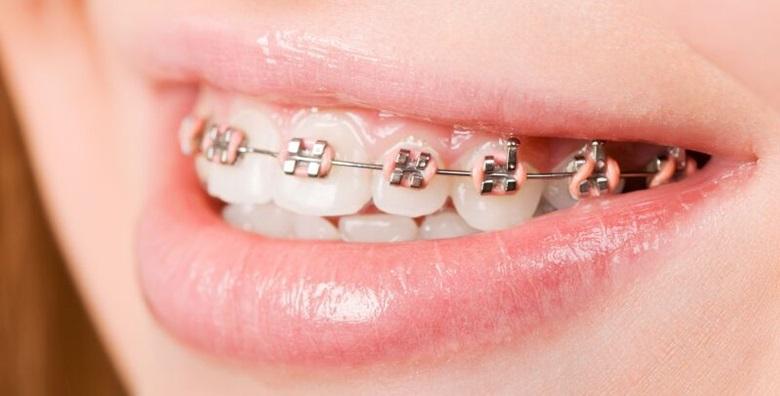 Aparatić za zube - fiksni ortodontski aparatić za jednu čeljust uz uključene sve preglede, čišćenje kamenca, poliranje i pjeskarenje za 4.250 kn!