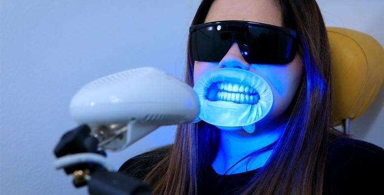 Izbjeljivanje zubi Opalescence Boost gelom i LED lampom uz odmah vidljive rezultate za 299 kn!
