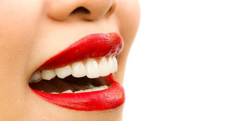 Čišćenje kamenca, poliranje i impregnacija zubi za 99 kn!