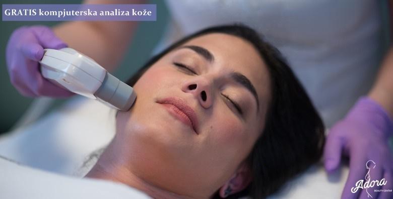[RENEW LIFT] Do 10 godina mlađi izgled lica nekirurškom metodom uz revolucionarni aparat koji je pomaknuo granice estetske medicine za 990 kn!