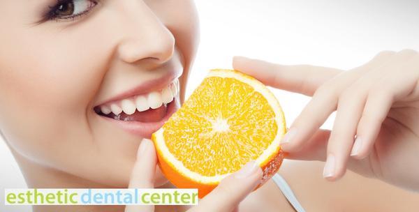 Izbjeljivanje zubi, čišćenje zubnog kamenca i poliranje