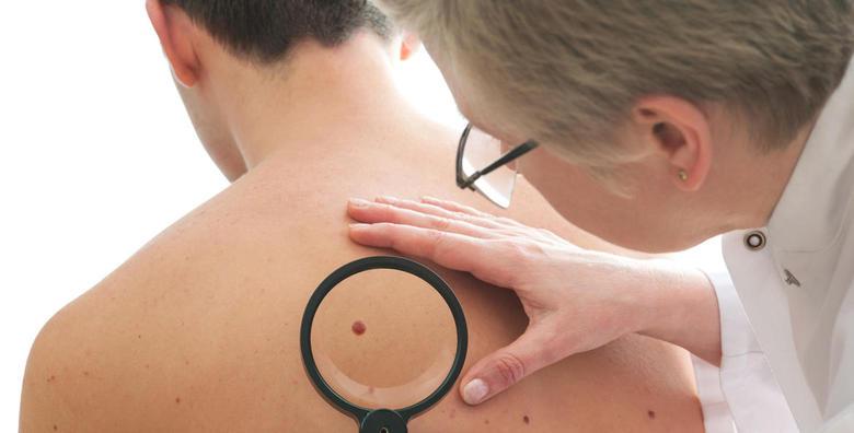 Dermatoskopski i specijalistički pregled madeža cijelog tijela za 299 kn!