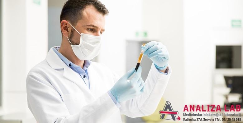 Testiranje antitijela štitnjače - anti-TG i anti-TPO za 209 kn!
