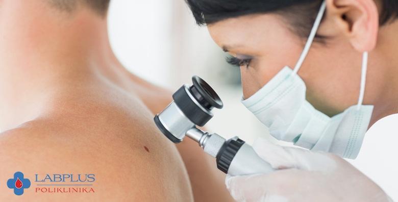 Dermatoskopski pregled madeža cijelog tijela u Poliklinici LabPlus za 250 kn!
