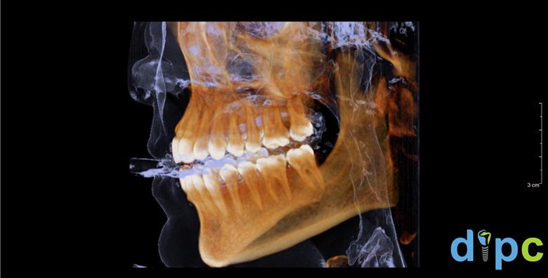 POPUST: 50% - CT gornje i donje čeljusti CBCT uređajem koji daje trodimenzionalnu snimku visoke rezolucije + stomatološki pregled gratis za 399 kn! (Dentalni implantološko protetski centar Hurčak)