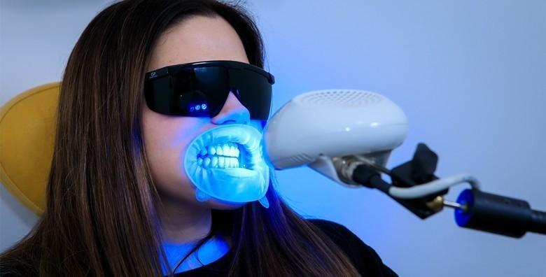Izbjeljivanje zubi Opalescence Boost gelom i LED lampom uz odmah vidljive rezultate za 199 kn!