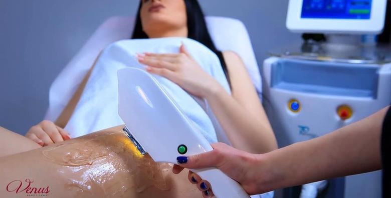[LASERSKO UKLANJANJE DLAČICA] Savršeno glatka koža uz diodni laser, trenutno najjači na tržištu! 5 tretmana cijelih nogu i bikini zone za 999 kn!