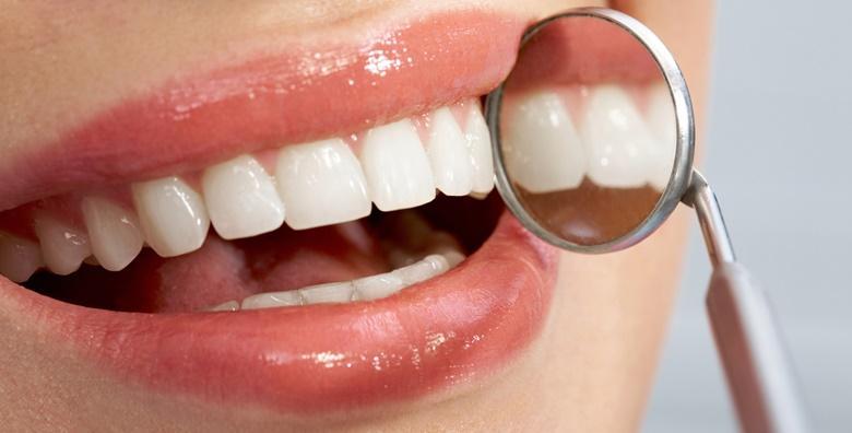 Stomatološki pregled, konzultacije, čišćenje zubnog kamenca, poliranje  i pjeskarenje zubi za samo 79 kn!
