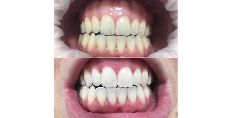 Beljenje zuba popusti