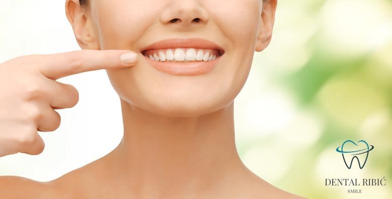 POPUST: 45% - ZUBNA LJUSKICA Savršena imitacija prirodnog zuba - poboljšajte izgled, boju i oblik uz bezbolan estetski zahvat u Ordinaciji Ribić za 439 kn! (Ordinacija dentalne medicine Ribić)