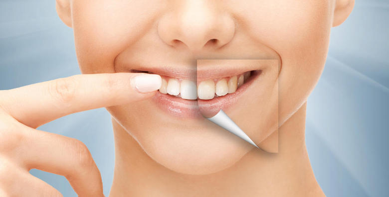 Izbjeljivanje zubi najmodernijom metodom - Opalescence Boost gelom i zaap lampom za 749 kn!