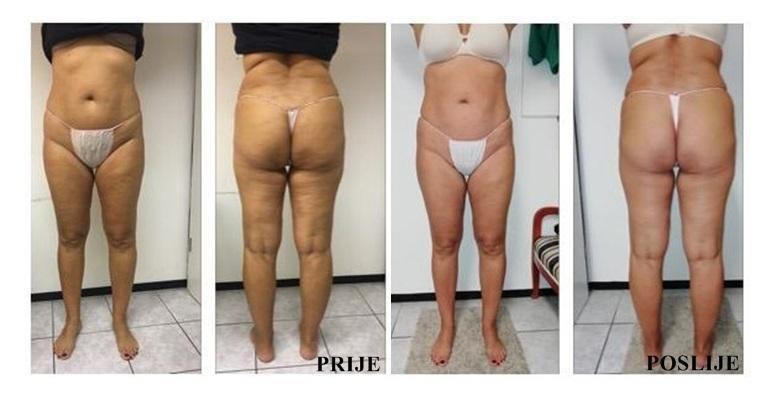 POPUST: 38% - 3 VACUSLIMA I 3 LIMFNE DRENAŽE Tretmani nogu, trbuha i stražnjiceMožete izgubiti čak 10 cm u obujmu već nakon prvog dolaska! (Studio ljepote Manuela)