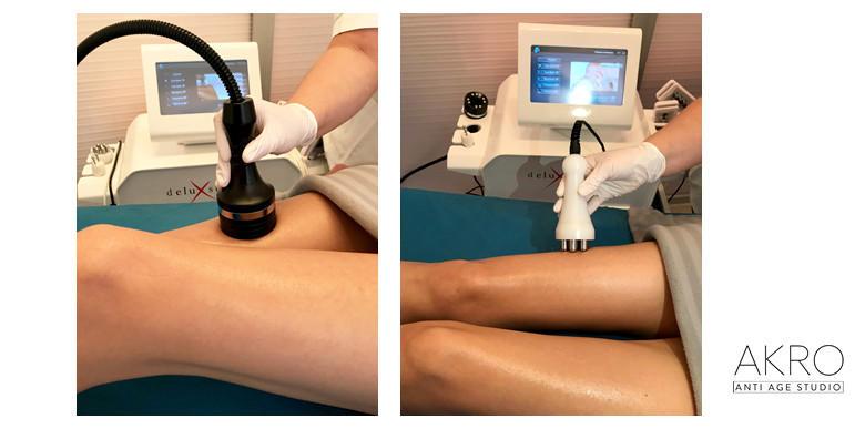 Inovativni program mršavljenja prilagođen upravo vama - 30 tretmana za 1.599 kn!