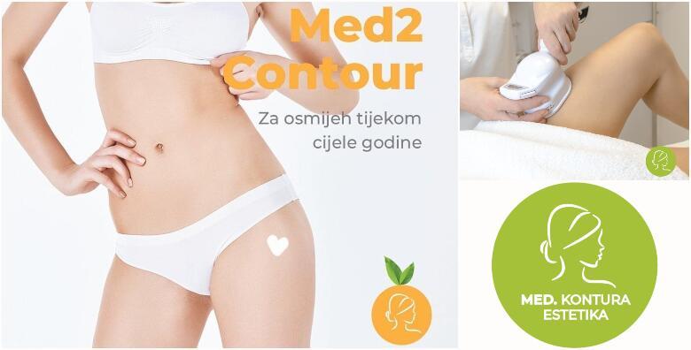 Med2Contour - najbolji u oblikovanju tijela i mršavljenju! 1 tretman od 399 kn!
