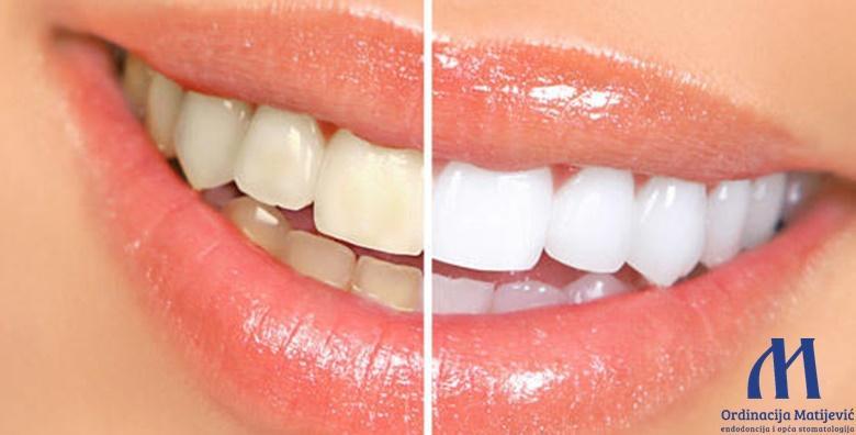 Izbjeljivanje zubi Opalescence Boost tehnologijom od 699 kn!
