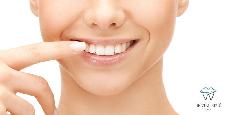 Plomba, čišćenje zubnog kamenca, poliranje pastom i pregled - povjerite svoj osmijeh doktorici s 27 godina iskustva u Ordinaciji Ribić za 199 kn!