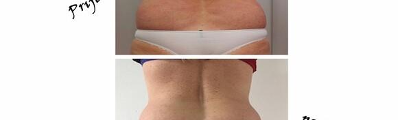 INJEKCIJSKA LIPOLIZA - vidljivi rezultati uz suvremeno mršavljenje čime se postiže razgradnja masnog tkiva na neinvazivan način za 1.250 kn!