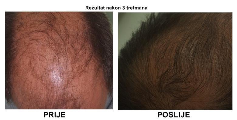 Muči vas ćelavost? Potaknite rast kose uz bezbolan, 100% prirodan tretman za 599 kn!