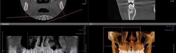 CBCT 3D snimka kompletne gornje i donje čeljusti uz detaljnu analizu snimke, besplatan dentalni pregled dr. med. dent MSc of Oral implantology i konzultacije za 399 kn!