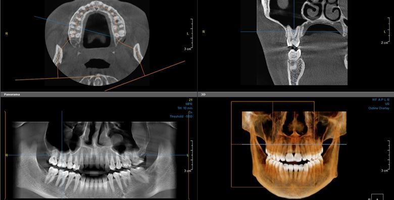 CT snimka gornje i donje čeljusti CBCT uređajem za 399 kn!