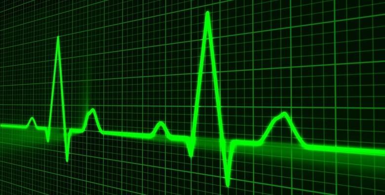 Kompletna kardiološka obrada - ergometrija, UZV i EKG za 875 kn!